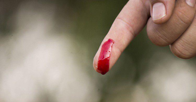 Heridas con hemorragia (Pixabay)
