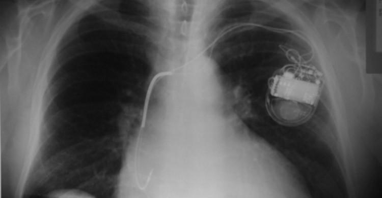 Marcapasos visto en una radiografía. Silvana Ciardullo (Flickr)